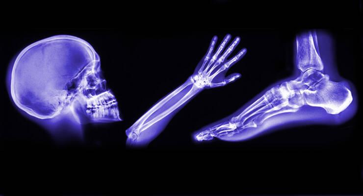 Фото к статье: Краниосакральная остеопатия