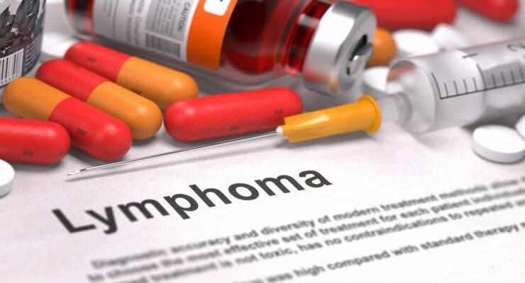 Фото к статье: Коварная лимфома: причины, симптомы и лечение