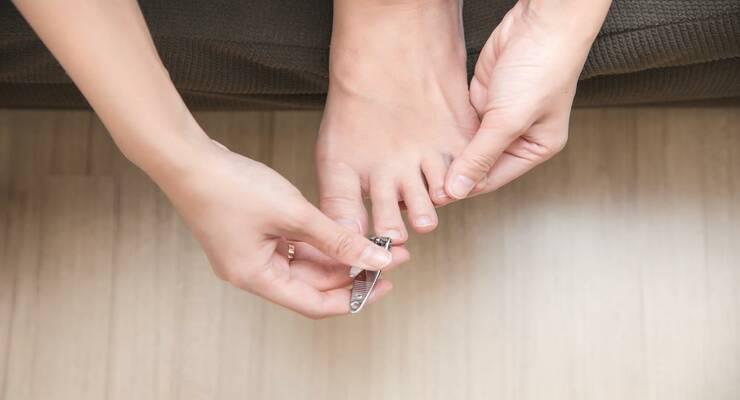 Фото к статье: Почему плохо выглядят ногти на ногах
