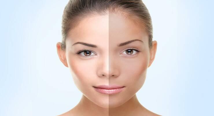 Фото к статье: Асимметрия: почему одна сторона лица выглядит лучше другой