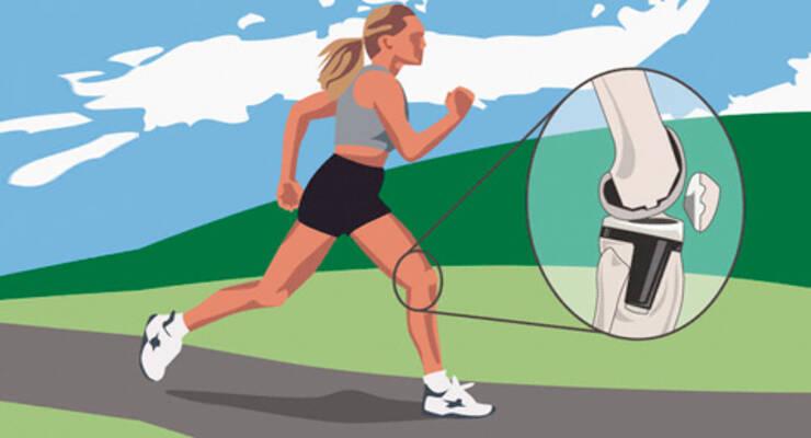 Фото к статье: 10 советов как уберечь колени от травм