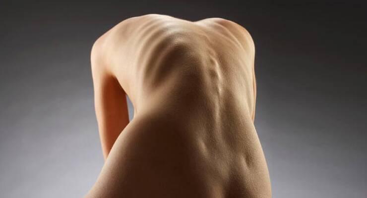 Фото к статье: Анорексия