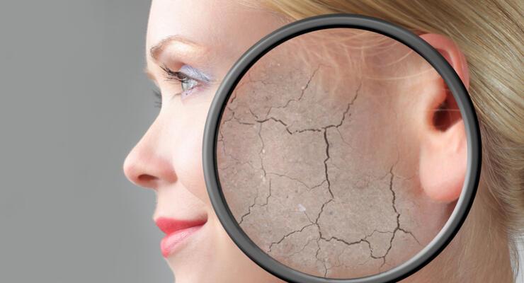 Фото к статье:  Как избавиться от гиперкератоза